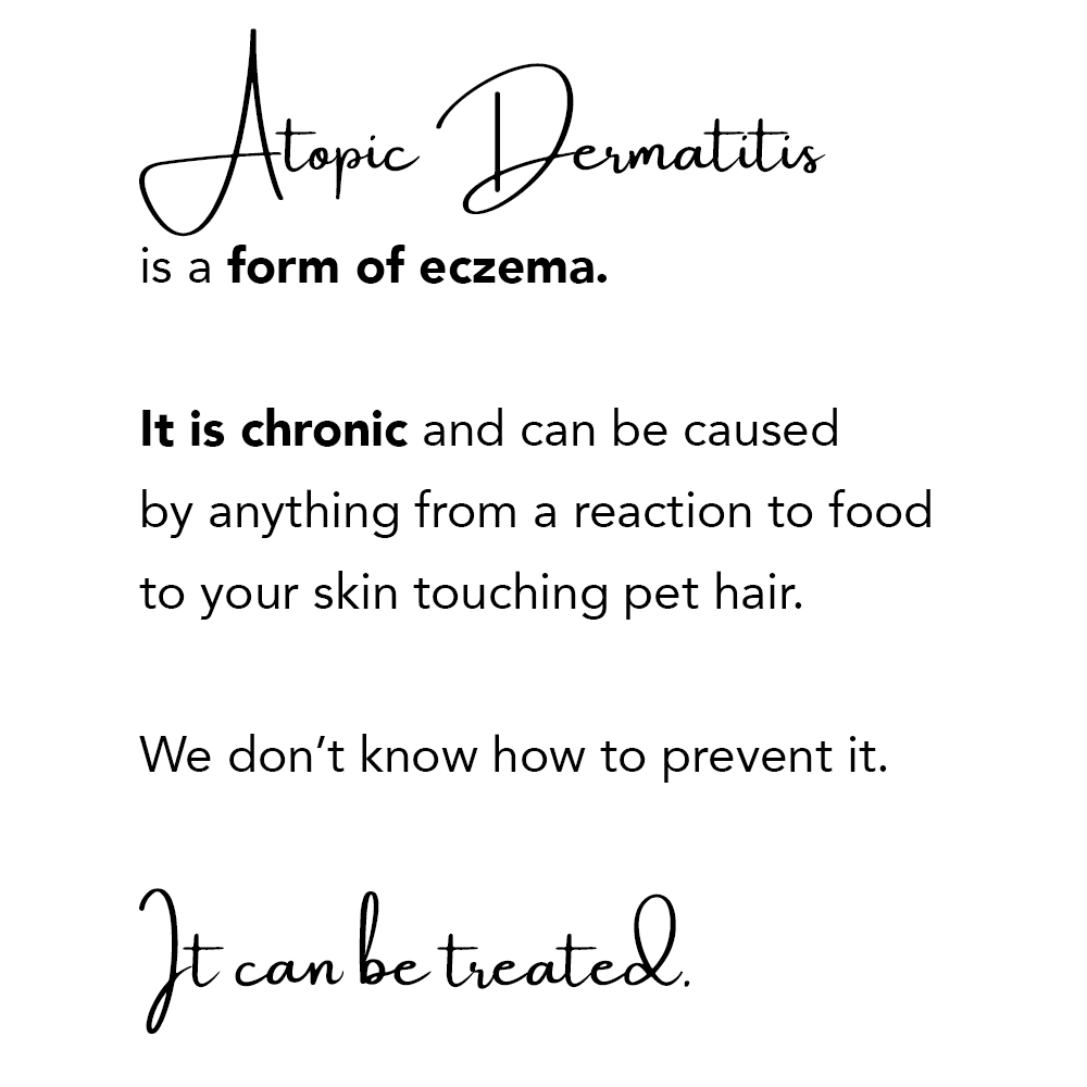 Atopic dermatitis is a form of eczema. It is chronic and can be caused by anything from a reaction to food to your skin touching pet hair. We don't know how to prevent it. It can be treated.